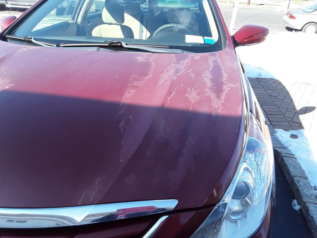 2011 Hyundai Sonata Clear Coat Peeling 5 Complaints